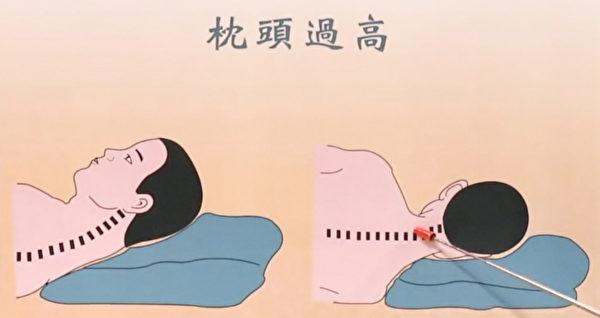 枕頭過高對脊椎的影響。(談古論今話中醫提供)