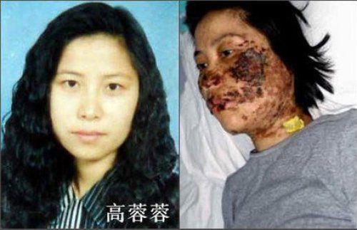法輪功學員高蓉蓉被中共警察電擊前後的照片。(明慧網)