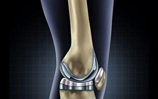 自供電智能膝關節假體 減少再手術次數