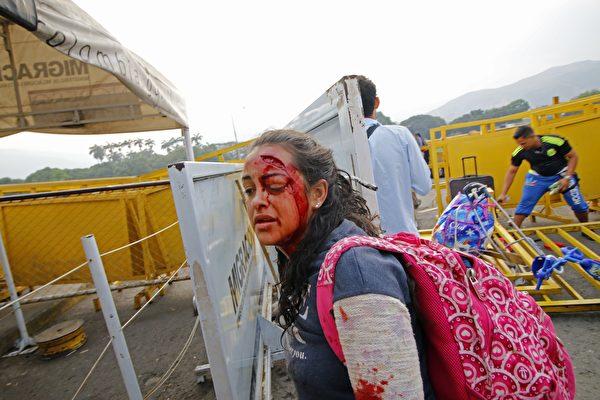 在哥倫比亞邊境Simon Bolivar橋,委內瑞拉人要求國家警察讓提供人道主義援助的物資車輛進入,發生衝突。一位婦女受傷。(SCHNEYDER MENDOZA/AFP/Getty Images)