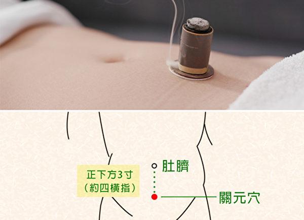 艾灸肚脐或肚脐下方的关元穴,可以改善气血循环,保养子宫,预防妇科疾病。
