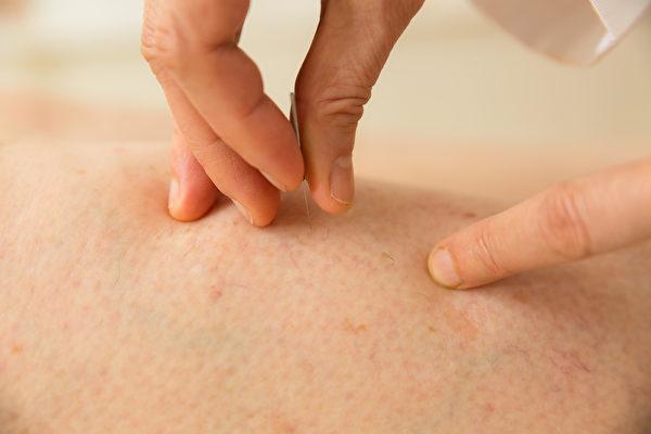 针灸是传统的中医治疗方法,可以止痛、治病、急救,很多古代的针灸法已濒临失传。
