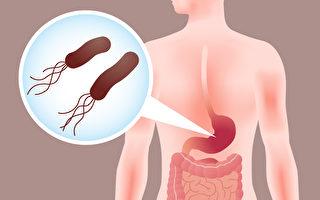 如何检查出幽门螺旋杆菌,预防胃癌