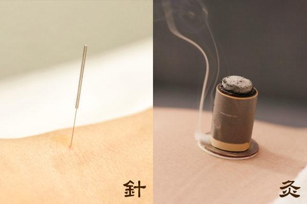 """中医治疗方法针灸,分为""""针""""和""""艾灸""""两部分。"""