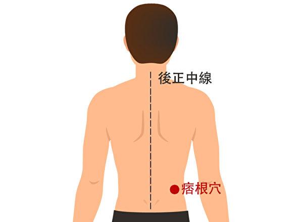 痞根穴也可以治疗子宫肌瘤。(Shutterstock/大纪元制图)
