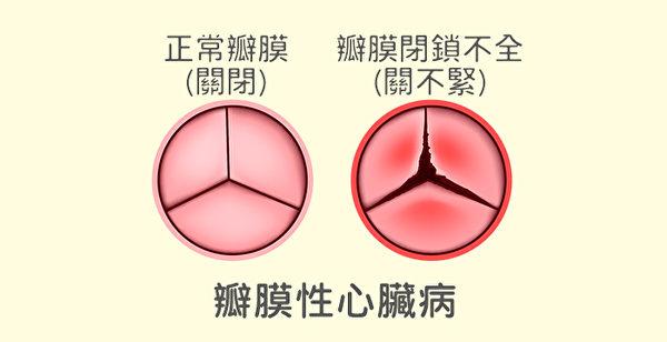 瓣膜性心臟病可能是因為感染(如風濕性心臟病),或是年齡大退化造成。
