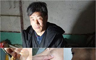 南京邵明亮被软禁近3年 网友看望遭警打伤