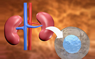 有望替代肾移植?科学家研究干细胞恢复肾功能