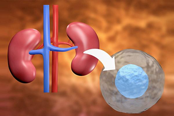 幹細胞有望幹細胞可能有望替代腎移植,為受慢性和衰弱性腎臟疾病折磨的患者提供治療。(Fotolia)替代腎移植,為受慢性和衰弱性腎臟疾病折磨的患者提供治療。(Fotolia)