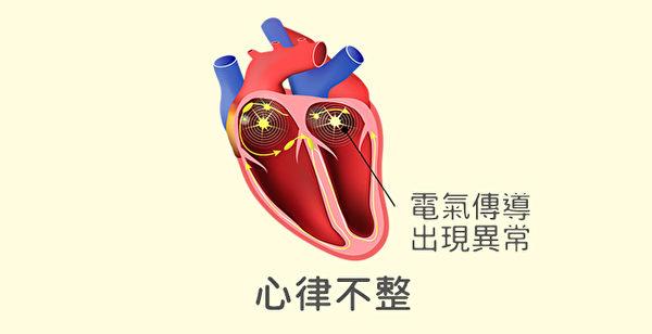 心律不整是心臟的電氣傳導出現異常,導致心跳不規則。