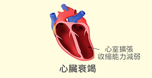 心臟衰竭是所有心臟病的末期表現,也就是我們俗稱的心臟無力。