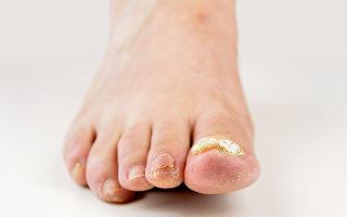 有些病人長期受灰指甲困擾,醫師強調治療灰指甲的關鍵。(Shutterstock)