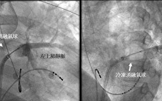 心房颤动新治疗 台大新竹引进冷冻导管消融手术