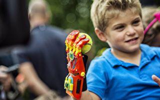 创免费3D假肢 澳洲工程师获英女王褒奖