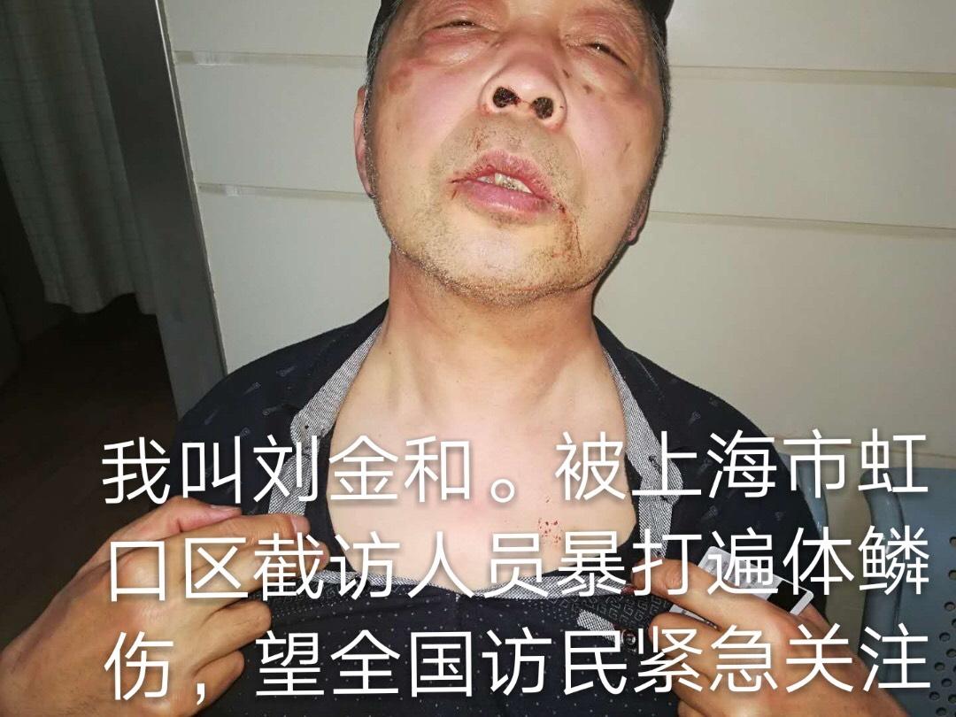 劉金和被政府打手楊建打得遍體鱗傷。(受訪者提供)