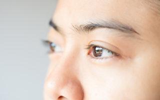 乾眼症患者想要減緩症狀,保護眼睛,應該怎麼做?(Shutterstock)