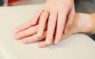指甲黑纹示警皮肤癌 救下选美冠军一命