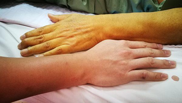 眼睛鞏膜或皮膚發黃,可能是黃疸,屬於肝臟疾病。(Shutterstock)