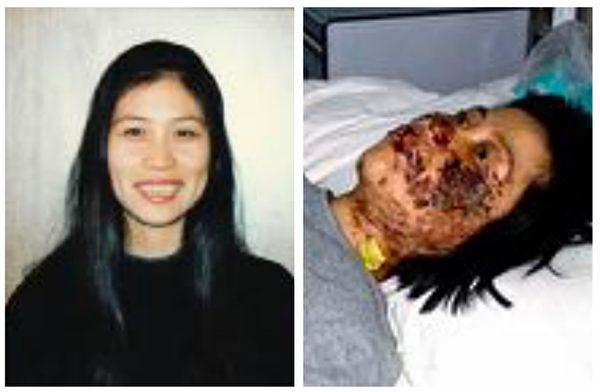 右圖為高蓉蓉被電擊後的照片。(大紀元合成圖)