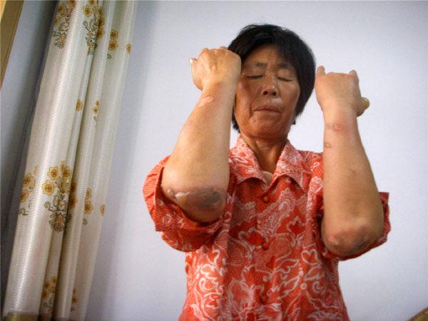 圖為桑春蓮被燒傷後的照片。(明慧網)