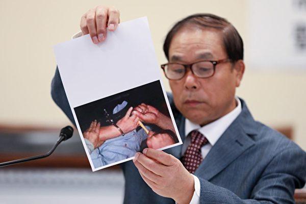 劉錫銅先生在研討會上講述自己在中國被非法關押期間遭受的酷刑折磨。(大紀元)