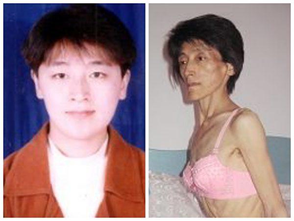 左圖:宋豔群被迫害前的照片;右圖:遭迫害後宋豔群剛出院的照片。(明慧網)