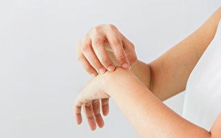 汗皰疹好發於手掌、手指、腳部,中醫如何治療?(Shutterstock)