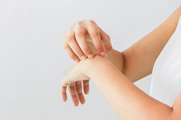 汗疱疹好发于手掌、手指、脚部,中医如何治疗?(Shutterstock)