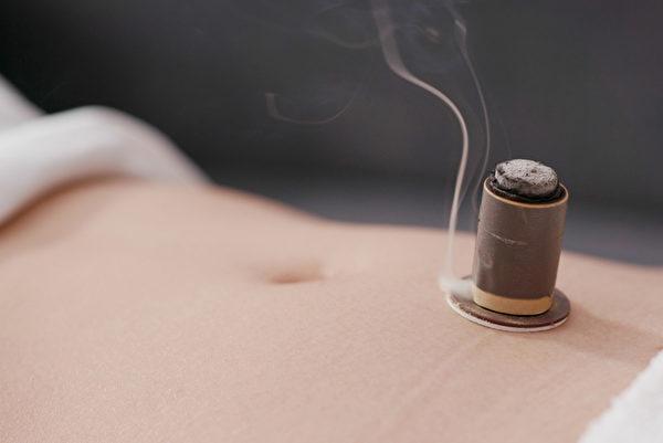 艾灸养生防病历史悠久,《扁鹊心书》说,人如果没病时,可常灸关元、气海、命门等穴位。(Shutterstock)