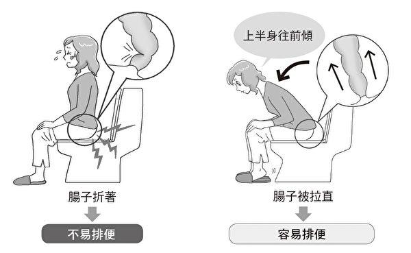 坐在馬桶上,幫助順利排便、避免便祕的姿勢。(如何出版提供)