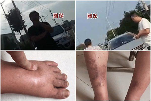 江天勇雙腳嚴重浮腫就醫被阻 妻急籲關注