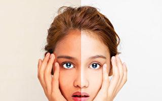 牙齒矯正是改善面部不對稱的好時機