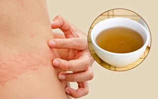 中医看荨麻疹有四种类型,如何食疗改善荨麻疹?(Shutterstock/大纪元制图)