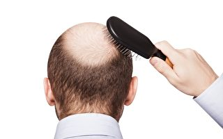 研究者發明用干細胞治療脫髮