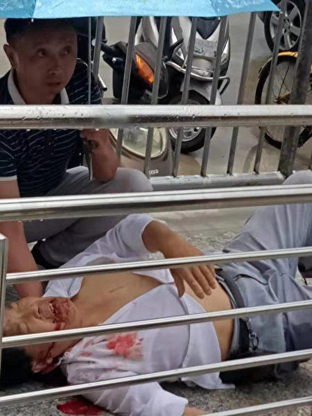 7月26日,四川綿陽遊仙區石馬鎮中科社區七姓壩片區拆遷指揮部發生一起爆炸案。圖為受傷者。(受訪者提供)