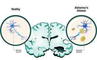 新方法可准确诊断阿兹海默症