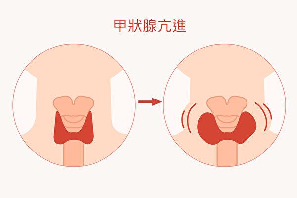 甲状腺亢进与否,与人体状况有绝对的关系。(Shutterstock/大纪元制图)