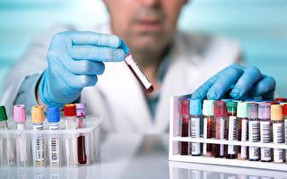 医疗化验失误可能严重危及多个病患?