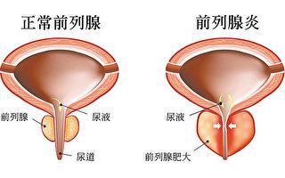 【预防前列腺疾病】现代男性应如何保养前列腺?