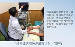 超音波導引神經解套注射  緩解腕隧道症候群