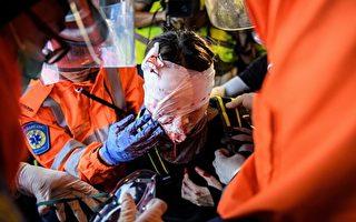 【翻牆必看】8.11示威女子眼睛中彈大量流血