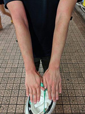香港警方對於反送中傳媒採訪多番阻撓,記者在前線報道面臨中彈、受傷、被粗暴對待的情形。圖為大紀元新唐人記者黃曉翔8月5日晚中催淚彈,手臂感刺痛和灼熱。(李明真/大紀元)