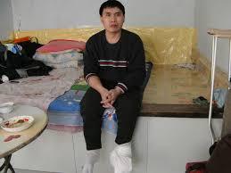 楊佔久被冤判7年,其雙腳被迫害致潰爛。(明慧網)