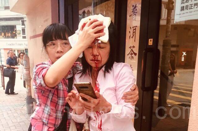 9月24日下午4點左右,法輪功學員廖秋蘭在長沙灣警署附近被襲擊,頭破血流。(安帕/大紀元)