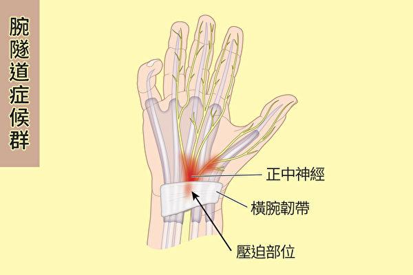 腕隧道症候群就是通过腕隧道的正中神经因为受到压迫、压力变大等原因受损,使大拇指、食指、中指及无名指感到麻木的情况。(Shutterstock/大纪元制图)