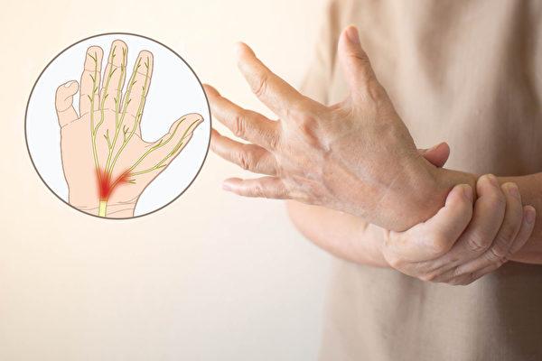 手麻是腕隧道症候群的典型症状,特别是前四根手指麻木。(Shutterstock/大纪元制图)