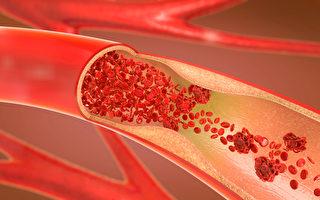 血管通了人就輕鬆   如何預防動脈栓塞?