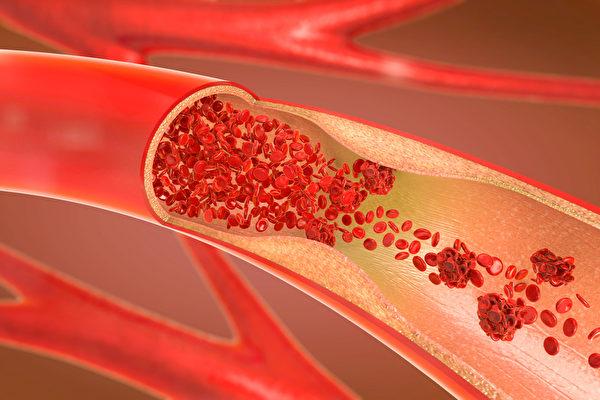 動脈栓塞就是動脈血管被栓塞物堵塞的疾病,如何預防?(Shutterstock)