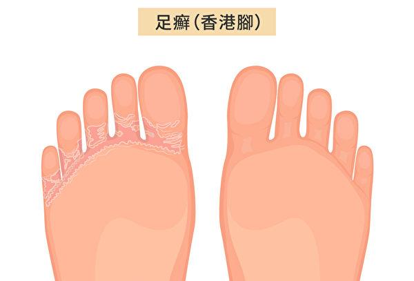 足癬(Athlete's Foot)俗稱香港腳或腳氣,是腳部皮膚真菌感染引起。(Shutterstock/大紀元製圖)
