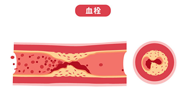 動脈栓塞是指動脈中有血栓堵住血管,影響了血液的流通。(Shutterstock)